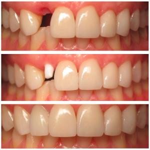 ceramic implant placement