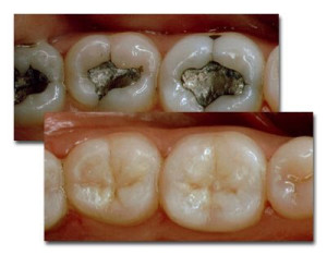 amalgam vs. composite fillings