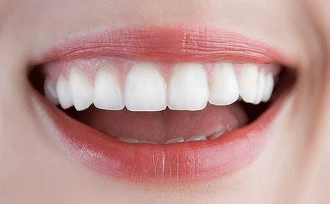 4 Keys to Keep Your Teeth Remineralizing Naturally
