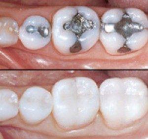 amalgam & composite fillings