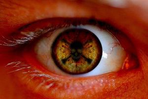 poison sign in eye