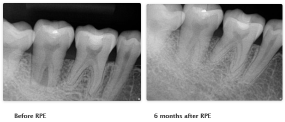 x-rays showing before and after Perioscopy