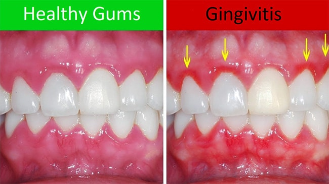 healthy gums vs gingivitis