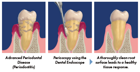 A New Way to Treat Gum Disease: Perioscopy
