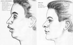 mouth breathing compared to normal facial development