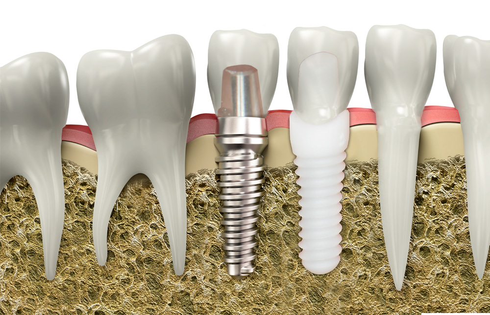 Titanium or Ceramic Implants: Does It Make a Difference Which You Choose?